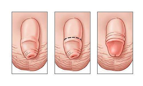 Dài bao quy đầu trước và sau quá trình tiểu phẫu