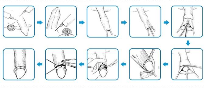 Quy trình chữa dài bao quy đầu bằng tiều phẩu cắt bao quy đầu