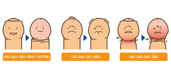 Bao quy đầu bình thường và những bệnh lý thường gặp ở bao quy đầu