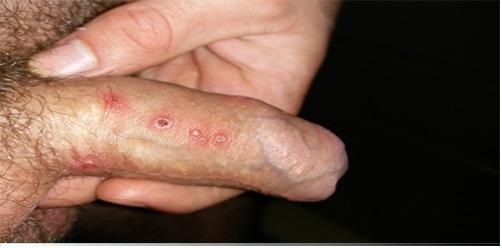 Mụn rộp sinh dục nếu không được điều trị sớm có thể gây nhiều biến chứng