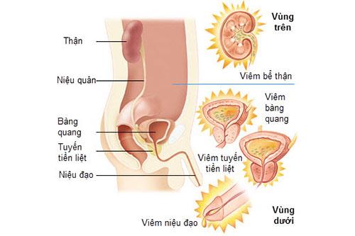 Triệu chứng bệnh nhiễm khuẩn tiết niệu 1