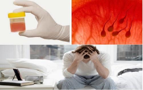 Xuất tinh ra máu là hiện tượng có máu trong tinh dịch nam giới