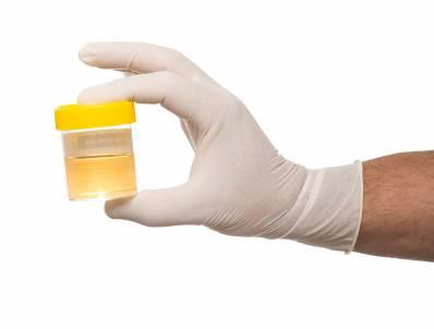 Xét nghiệm phát hiện viêm niệu đạo 1