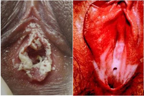 bệnh lậu ở âm đạo của nữ giới
