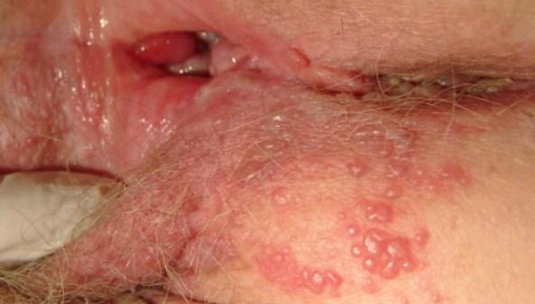 hình ảnh mụn rộp sinh dục ở âm đạo phụ nữ