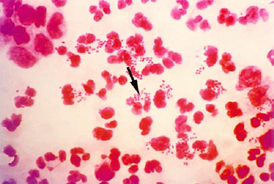 Bệnh lậu do vi khuẩn Neisseria Gonorrhoeae gây nên
