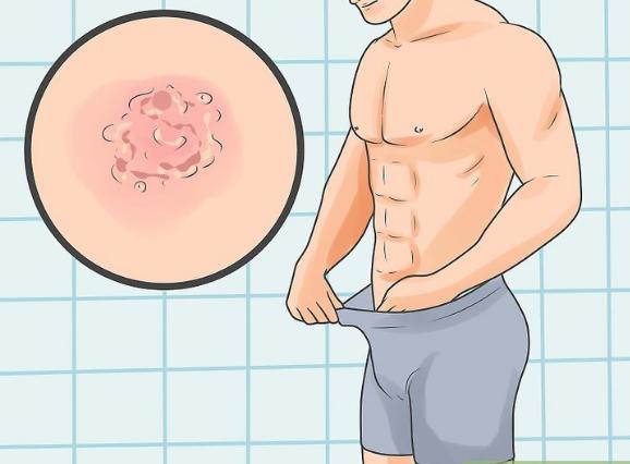 mụn rộp sinh dục ở nam giới