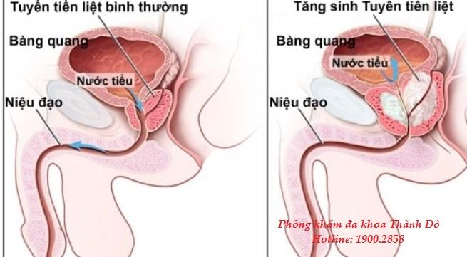 Phòng khám đa khoa Thành Đô - Giải pháp vàng điều trị tăng sinh tuyến tiền liệt