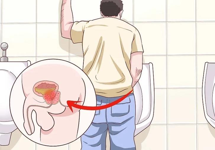 u nang tuyến tiền liệt khiến cuộc sống của người bệnh ảnh hưởng trầm trọng