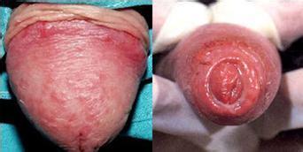 Kĩ thuật GPH - điều trị viêm nhiễm cơ quan sinh dục 2