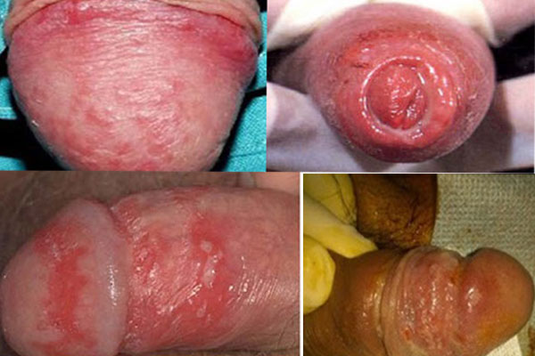 Hệ thống quang dẫn CRS điều trị viêm quy đầu nhanh chóng 2